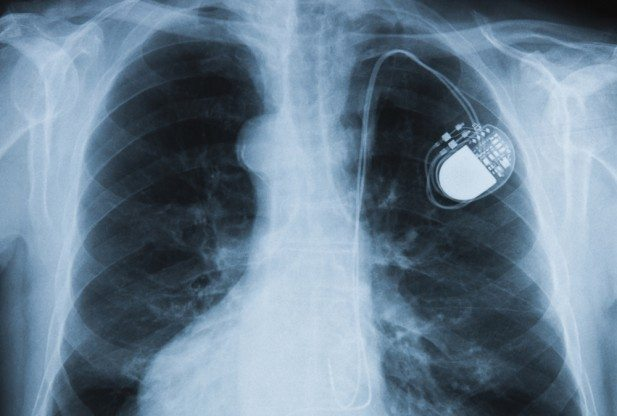 Hacking Heart Implants